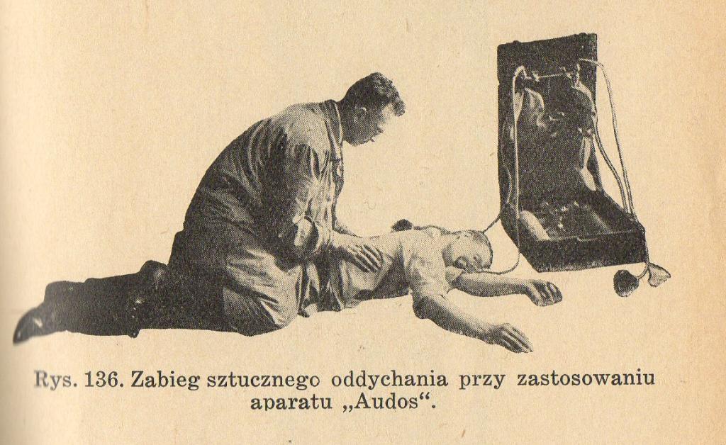 """Zabieg sztucznego oddychania przy zastosowaniu aparatu """"Audos"""""""